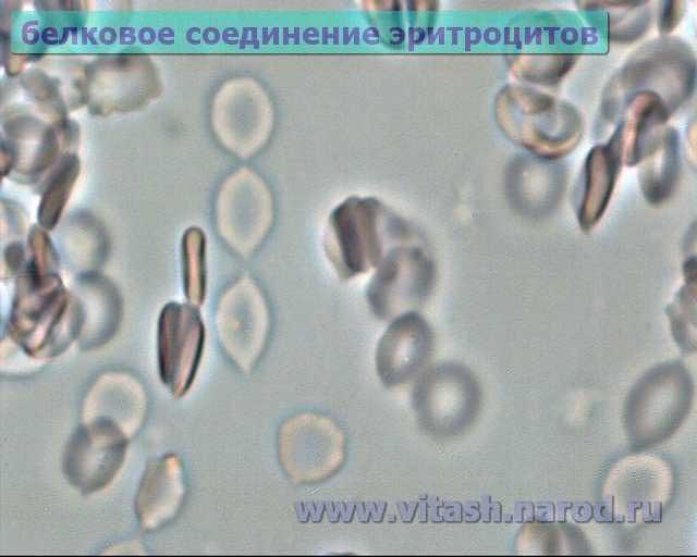 Активированный уголь для очищения организма от паразитов